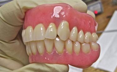 小さな部分入れ歯も、噛み合わせのためには重要